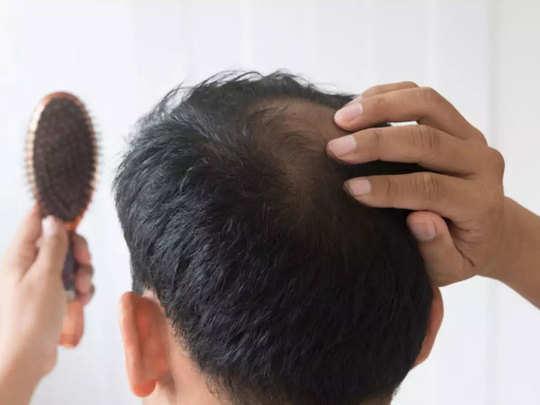 hair-fall-2