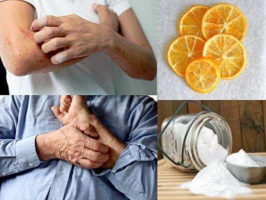 Home Remedy For Itching : शरीर में होने वाली खुजली को कम कर देगा यह घरेलू नुस्खा