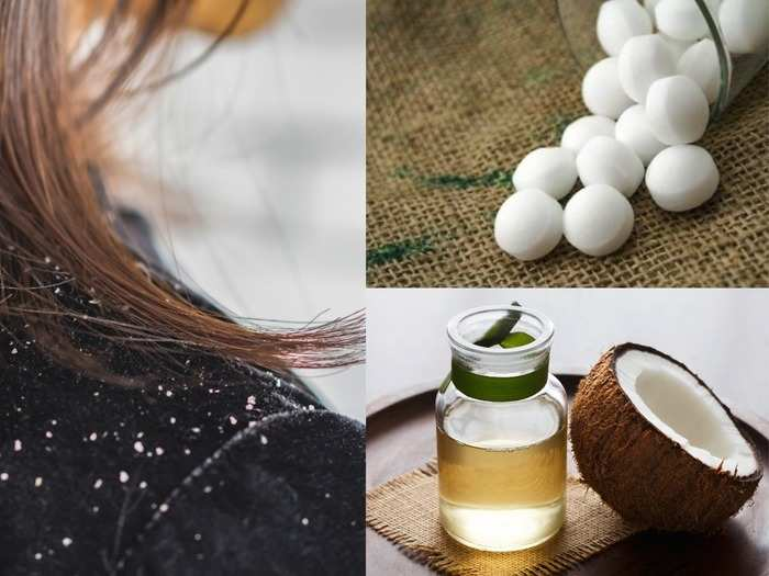 hair care how to remove dandruff with coconut oil and camphor for dandruff