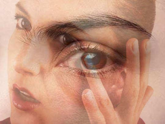 puffy-eyes-1