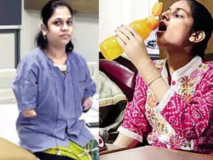 हाथ गंवाने वाली मुंबई की मोनिका