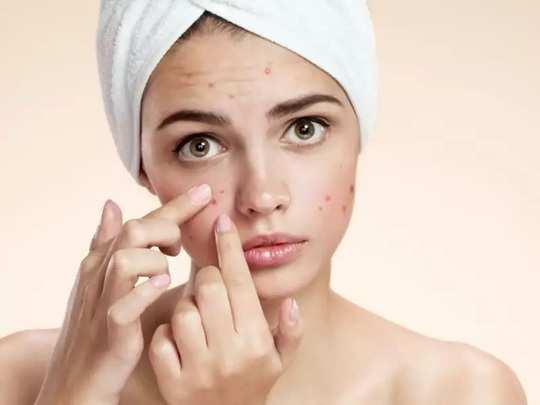 how to get acne by using ginger: இளமையா, அழகா, முகப்பரு இல்லாத முகத்துக்கு  இஞ்சியே போதும் ஆனா இப்படிதான் யூஸ் பண்ணனும்! - benefits and uses of ginger  for clear skin in tamil ...