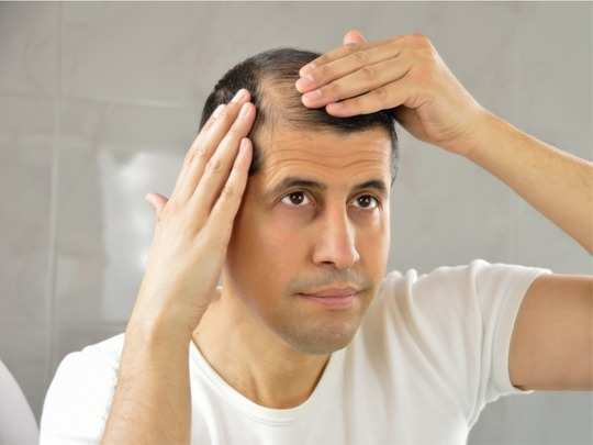 causes symptoms of male pattern baldness hair loss