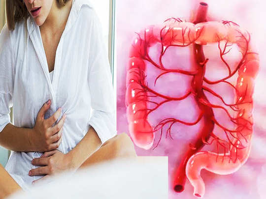irritable bowel syndrome symptoms and treatment and colonel cancer large intestine disease in hindi