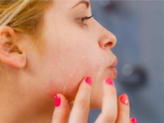 6 things you should avoid doing if you have dry skin