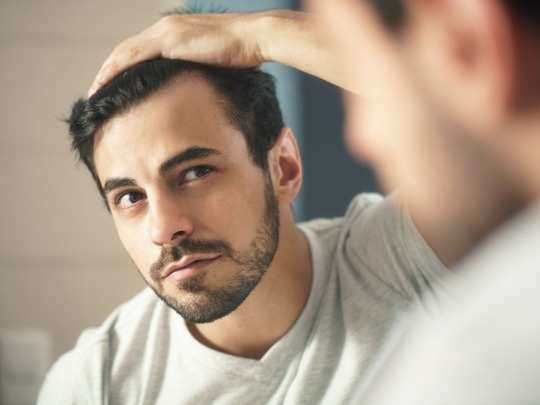 habits that can lead to premature baldness in men