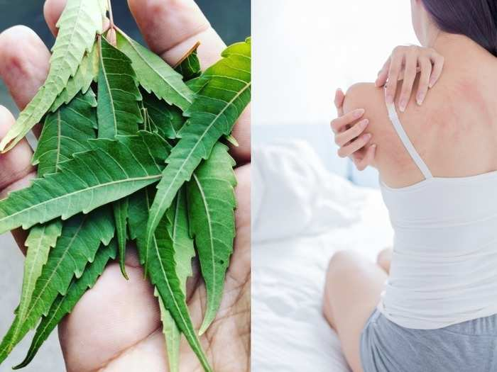 do you have skin allergies? these home remedies can come to your rescue