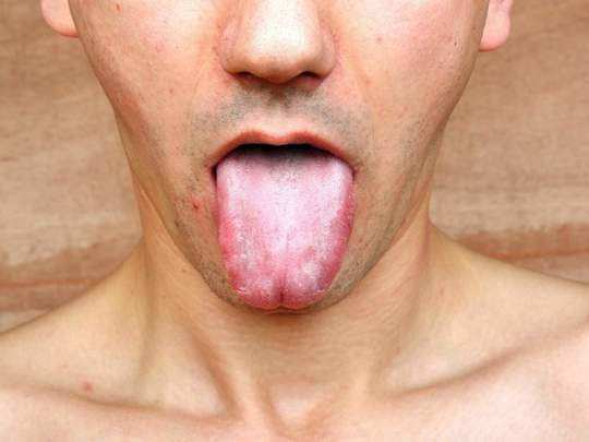 causes of white tongue and natural home remedies for it in marathi