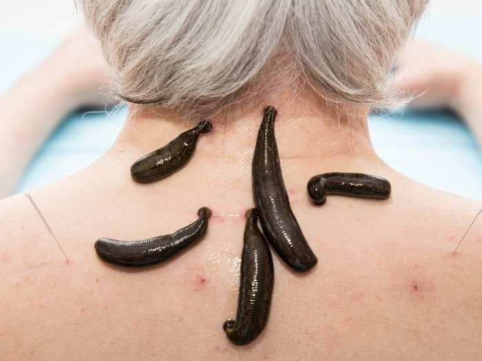 what is leech therapy proven health benefits and side effects