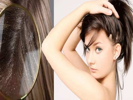 best home remedies to get rid of dandruff naturally in marathi