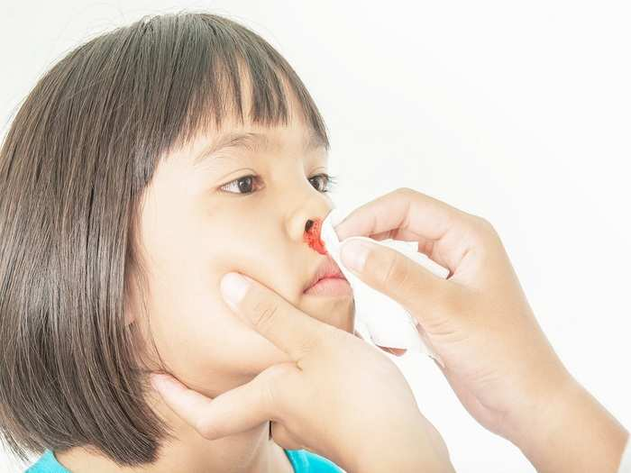 home remedies for nosebleeds in kids in hindi