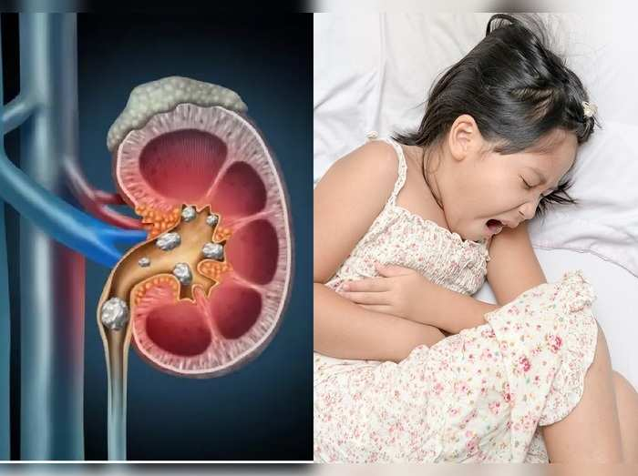 kidney stone symptoms causes treatment and prevention in kids in hindi