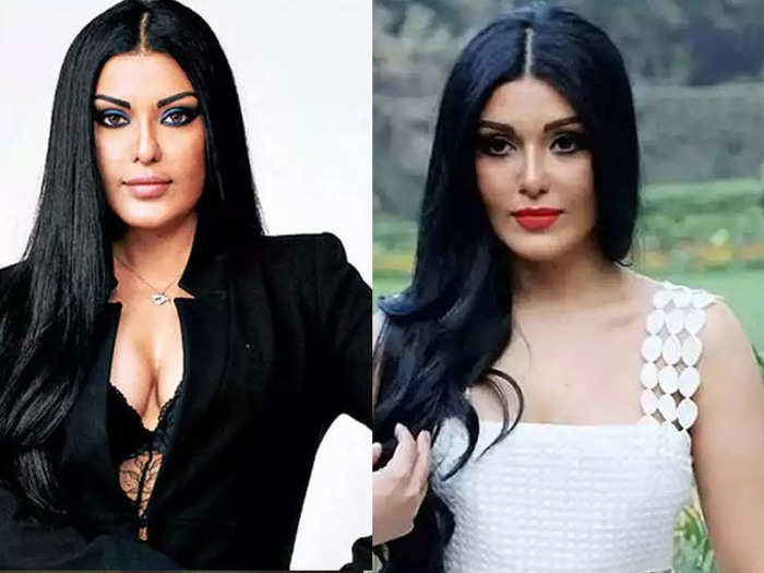 actress koena mitra on her failed surgery swollen cheekbones to water collection on face made her look weird