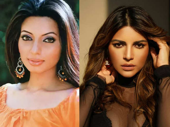 actress shama sikander reveals she did not have any plastic surgery and opted only for botox