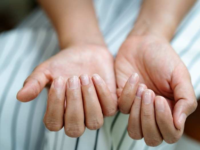 most covid positive patients experience skin infection in second wave