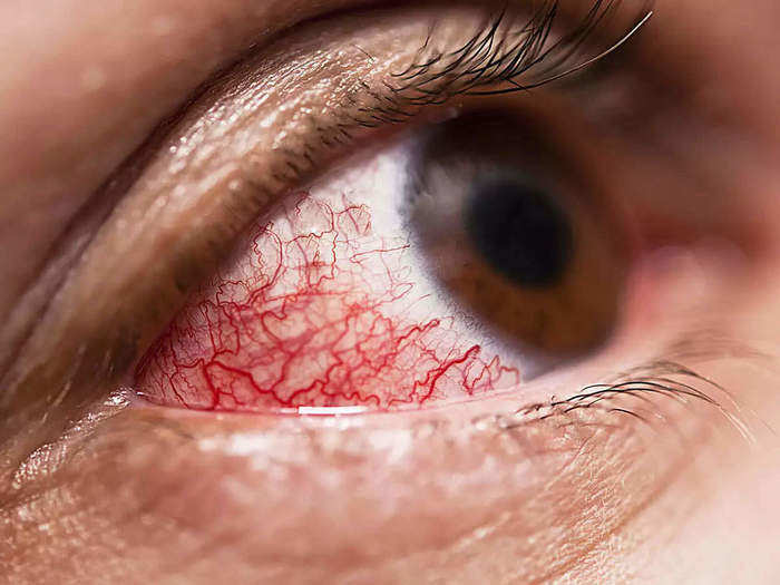 mucormycosis-on-rise-how-this-deadly-black-fungal-infection-is-making-people-blind