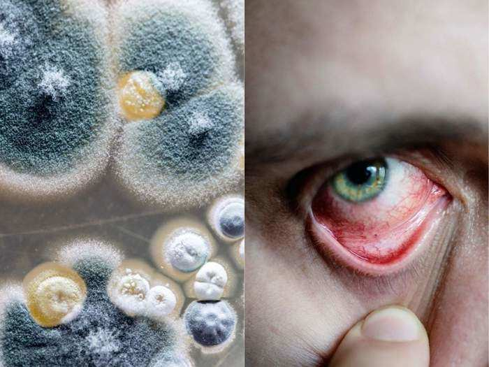 mucormycosis diseases symptoms treatment and information in marathi