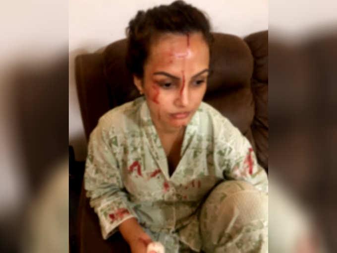 Nisha Rawal Injury