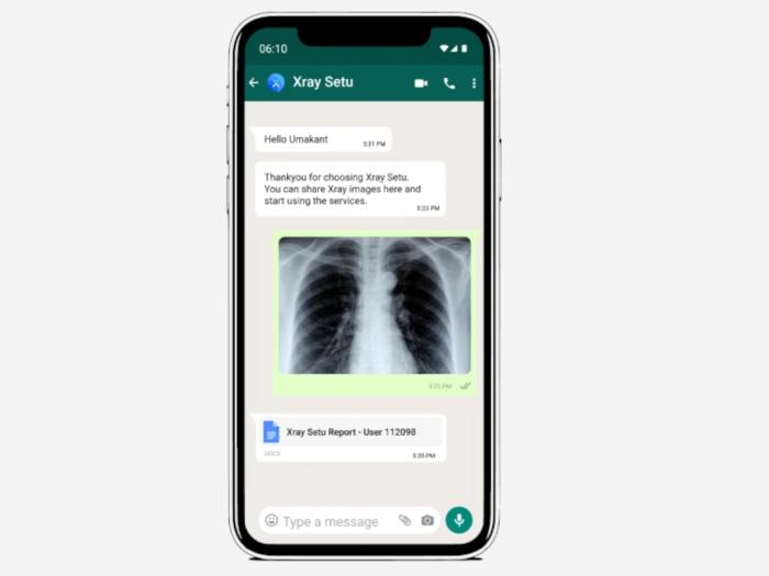 XraySetu service via WhatsApp: New AI-driven platform will help intervention of COVID-19 with help of Chest X-ray interpretation on WhatsApp.