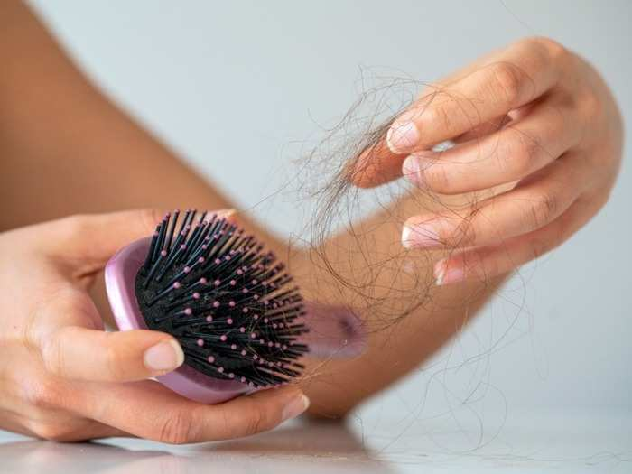  covid-19 and hair loss in corona recovered people which will takes 6 to 9 months to come back