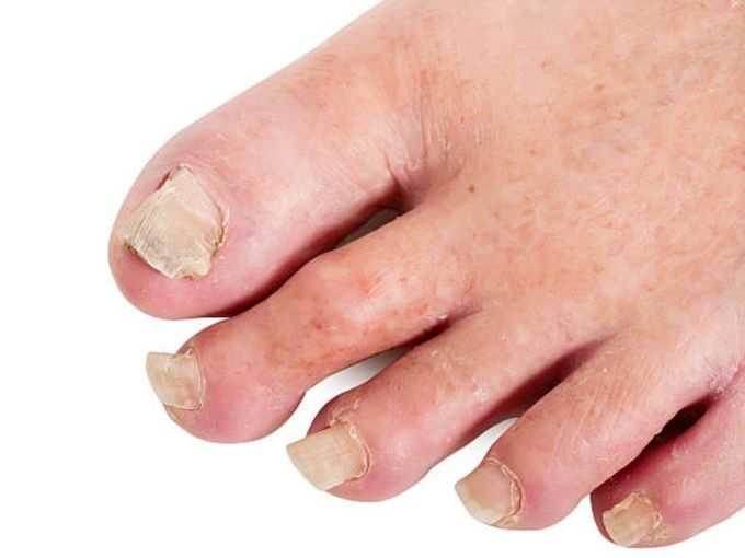 -covid-nails-