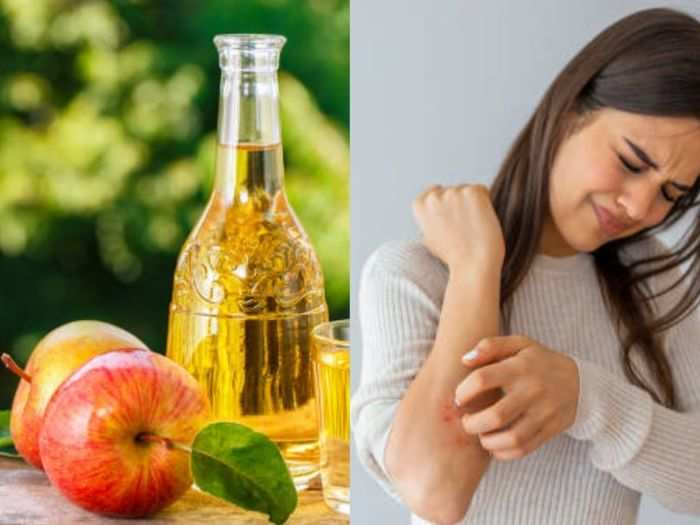 8 best home remedies for eczema and know itching natural treatment and prevention