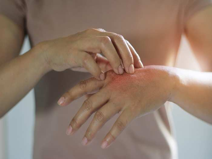 causes and treatment of fingers pain in pregnancy