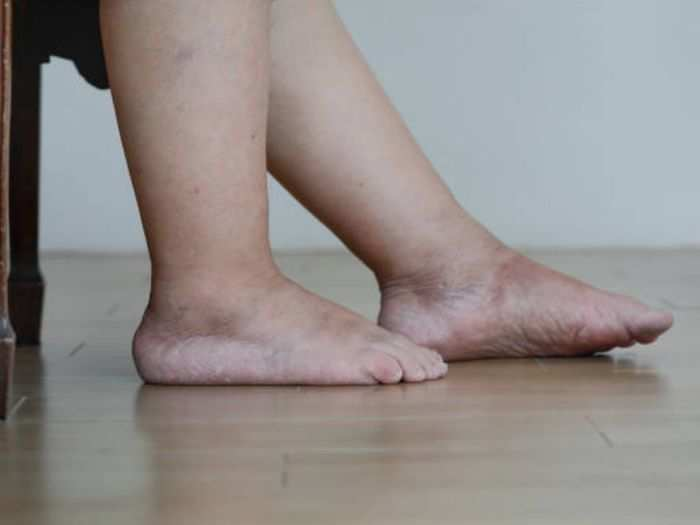 here are simple and safety tips to reduce water retention know its symptoms cause or treatment