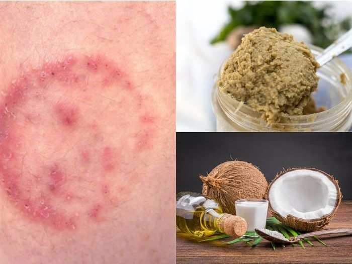 home remedies for ringworm fungal infection and know how to cure at home by natural treatments