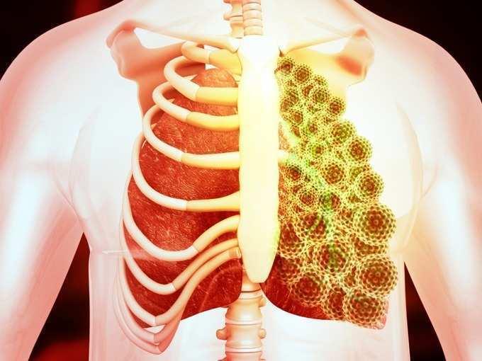 pneumonia causes symptoms and treatment: Pneumonia: न्यूमोनियाची 'ही' लक्षणे ठरत आहेत करोनाला जबाबदार, नसीरूद्दीन शाहांनाही केलं होतं रुग्णालयात दाखल!