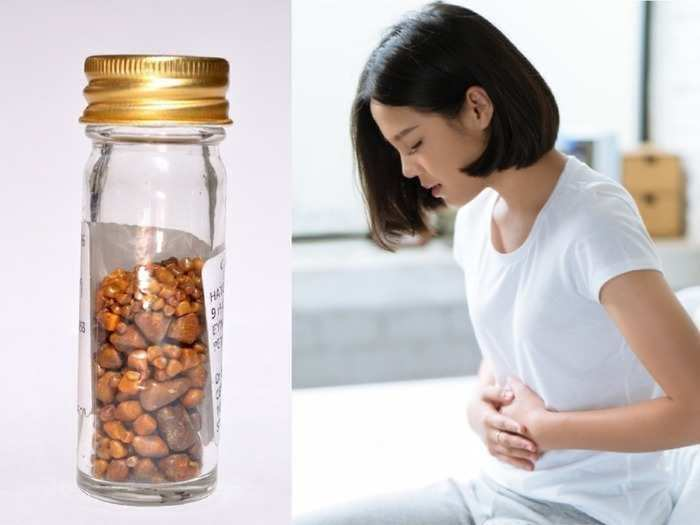 laparoscopic surgeon explained gallbladder stone and its symptoms, causes and remedies
