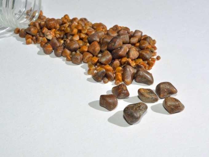 how to remove gallbladder stone without operation: Gallstones : 'ही' लक्षणे देतात पित्ताशयात स्टोन झाल्याचे संकेत, दुर्लक्ष केल्यास येऊ शकते पित्ताशय काढून टाकण्याची वेळ!