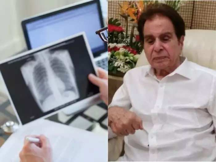 dilip kumar diagnosed with bilateral pleural effusion and know about this disease