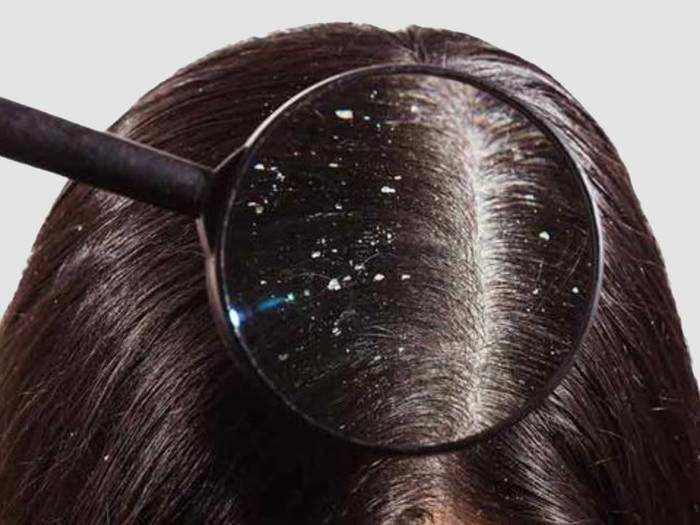 डेंड्रफ और टूटते बालों से हैं परेशान, तो ट्राय करें ये हेयर मास्क
