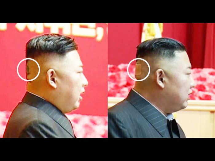 सिर के पीछे दिखा निशान (NK न्यूज ने KCTV के हवाले से शेयर की तस्वीर)