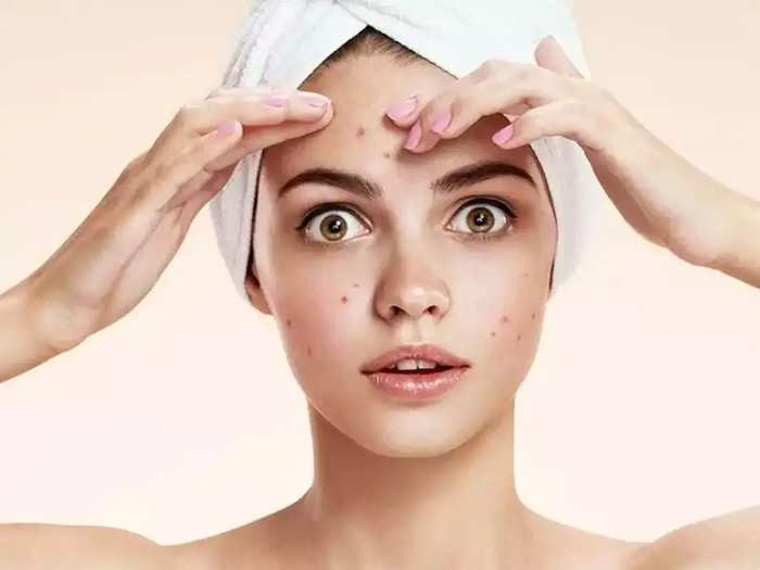 how do you get rid of pimples overnight and skin care tips