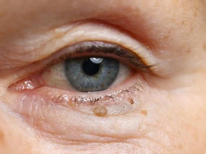 cholesterol bumps under eyes how to remove and here is 5 modern techniques